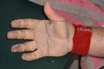 Les tacos, ou pansements, sont des protections « bricolées » par les joueurs à main nue.